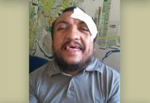 Parauapebas: Guardador de carros é agredido dentro de loja